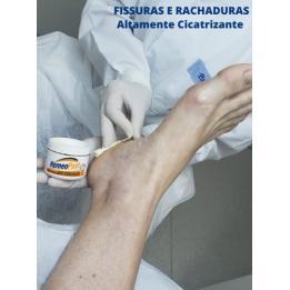 Homeopast Hidrante P/ Fissuras 30grs Ref. 100 Homeo